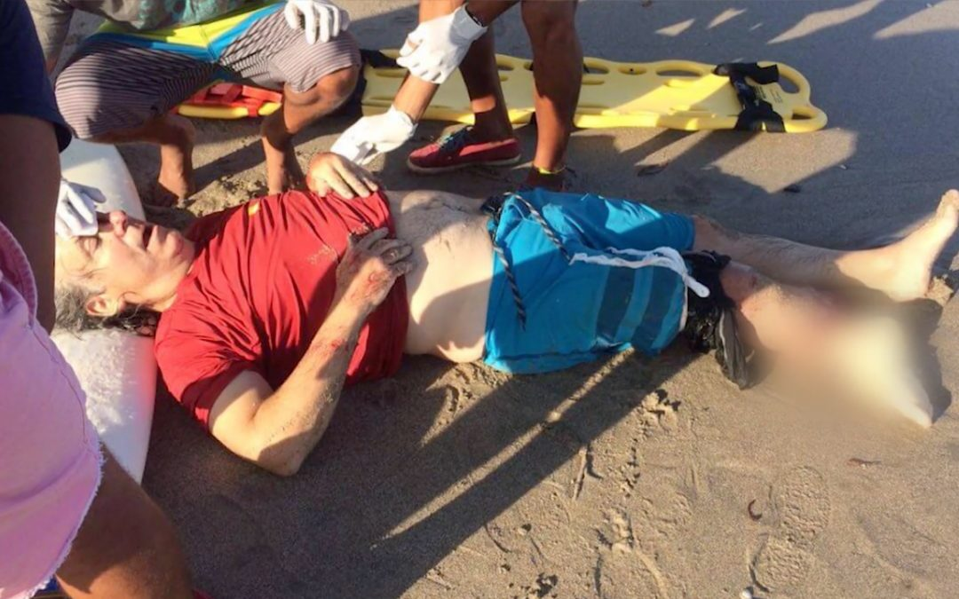 Surfer Vs Crocodile: A story of Survival